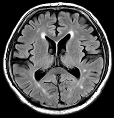 頭痛外来|脳外科医の考える適切な頭痛薬の使い方|初心者から上級者まで