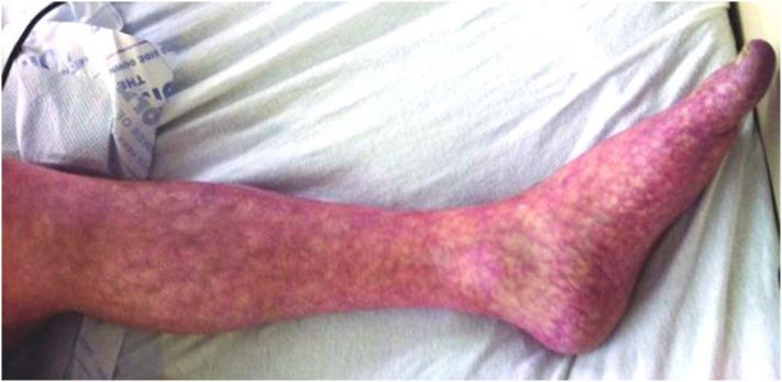 足 に 赤い 小さな 斑点