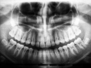 顎関節症の画像検査